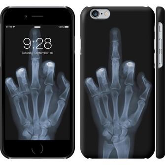 Чехол Рука через рентген 1007c-45